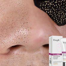 Mango Blackhead Remover & Anti-Acne